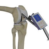 Knee Replacement with OrthAlign Technology